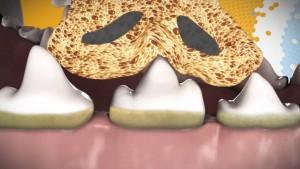 texture spécifique dentaflex